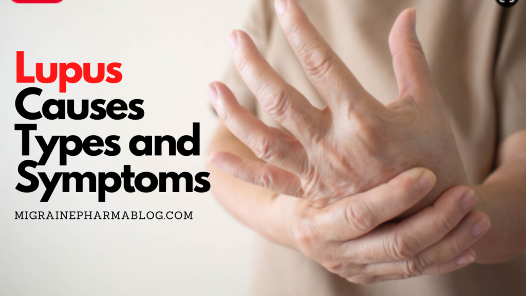 Lupus Causes Types and Symptoms
